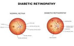 Image for  Eye health